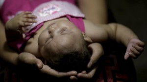 Gleyse Kelly holds the head of her daughter Maria Geovana, who has microcephaly, at his house in Recife, Brazil, January 25, 2016.Health authorities in the Brazilian state at the center of a rapidly spreading Zika outbreak have been overwhelmed by the alarming surge in cases of babies born with microcephaly, a neurological disorder associated to the mosquito-borne virus. Picture taken on January 25, 2016. REUTERS/Ueslei Marcelino